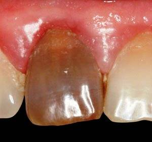Черный мертвый зуб