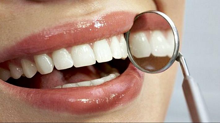 Как избавиться от чрного налета на зубах у взрослых и детей