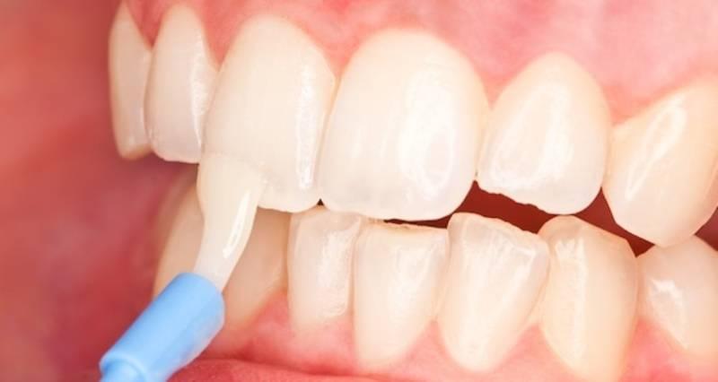 Химическая чистка зубов