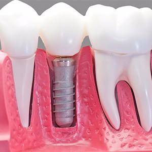 Зуб имплант