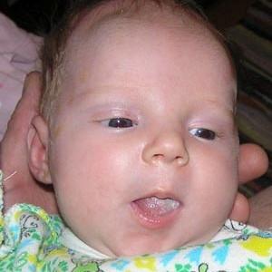 Молочный налет на языке у малыша