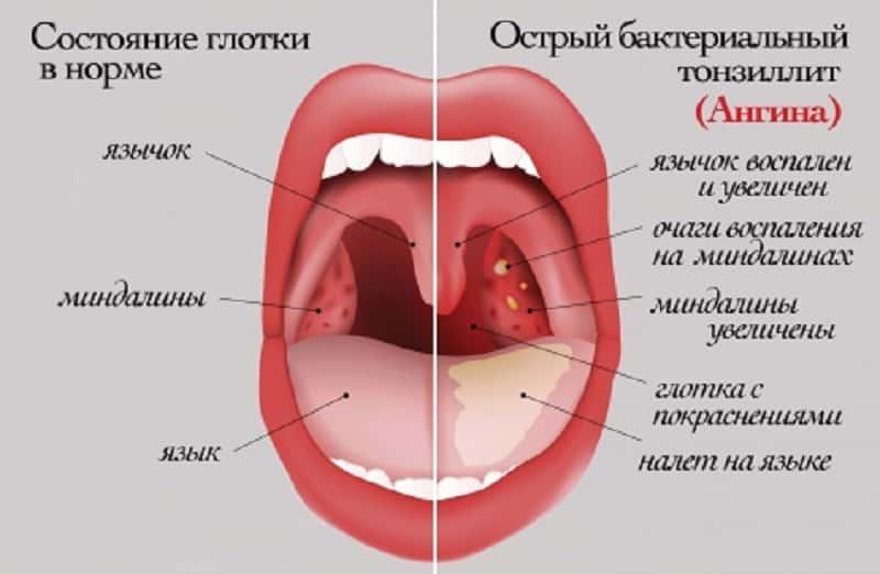 Нормальное горло и тонзиллит