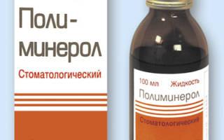 Чем лечить пародонтоз десен препараты