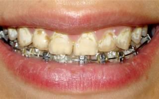 Образование зубного камня во время носки брекетов