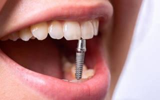 Имплант в зубах