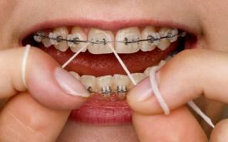 Зубная нить для брекетов – как её правильно выбрать и использовать?