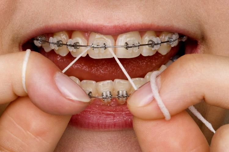 Чистка зубов зубной нитью при наличии брекетов