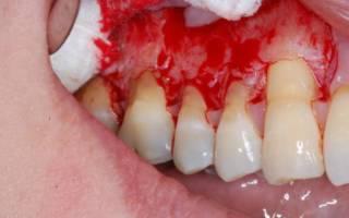 Хронический периодонтит зубов