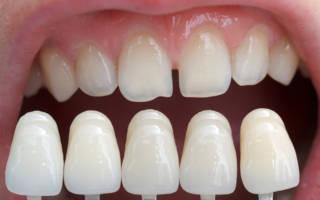 Люминиры в стоматологии