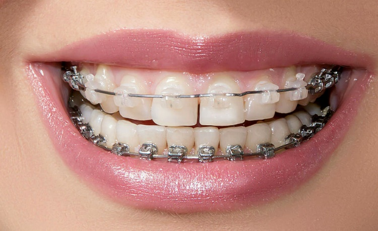 Сколько носят брекеты на зубах взрослые, подростки и дети для исправления прикуса