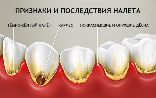 Признаки и последствия зубного налета