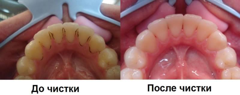Профессиональная чистка зубов - до и после процедуры