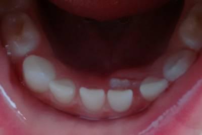 Прорезывание постоянных зубов у ребенка