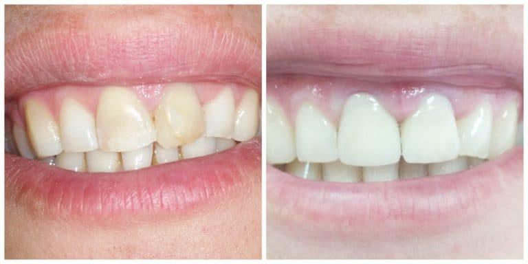 Пломбирование передних зубов до и после