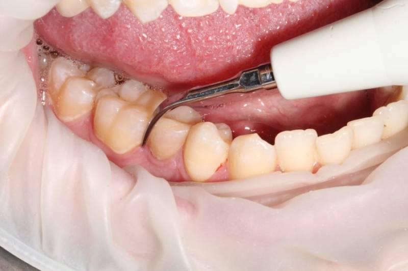 Чистка зубов скайлером