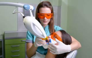 Проведение отбеливания зубов