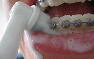Чистка брекетов электрической зубной щеткой