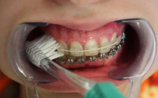 Чистка зубов ортодонтической щеткой