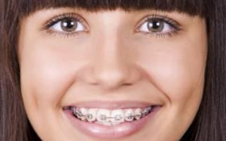 Девушка с брекетами