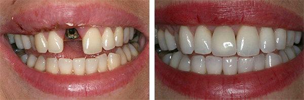 До и после процедуры имплантации