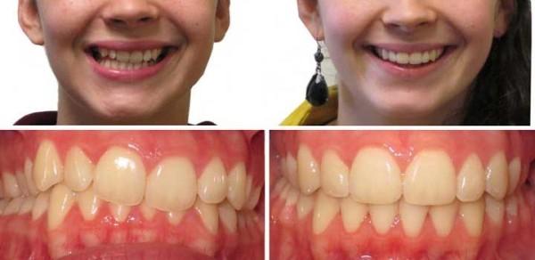 До и после установки брекетов