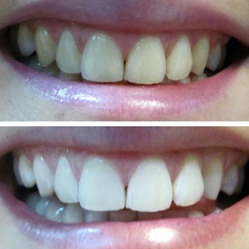 Фото до и после отбеливания содой