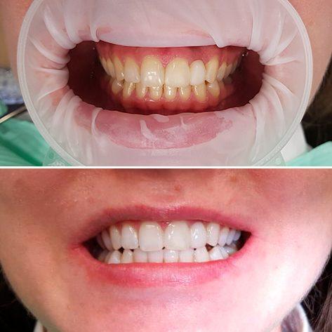 До и после процедуры отделивания