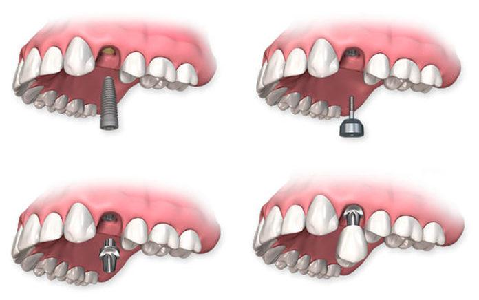 Протезирование зуба
