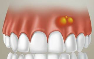 Гной в десне над зубом