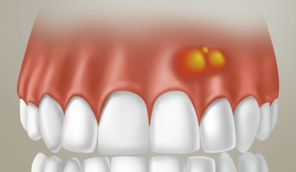 Нарывает десна над зубом