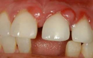 Гранулема на зубе
