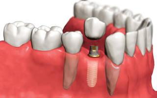 Стоит ли ставить имплант зуба?