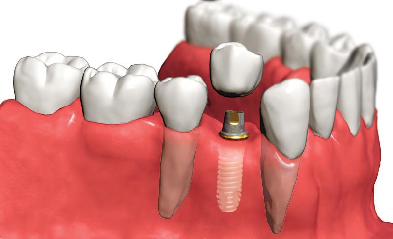 Осложнения после имплантации зубов (проблемы с имплантами)