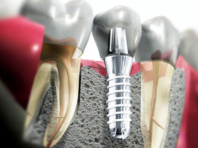 Корневидный имплант в челюсти