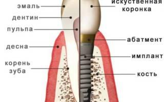 Строение импланта зуба