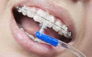 Чистка зубов с брекетами