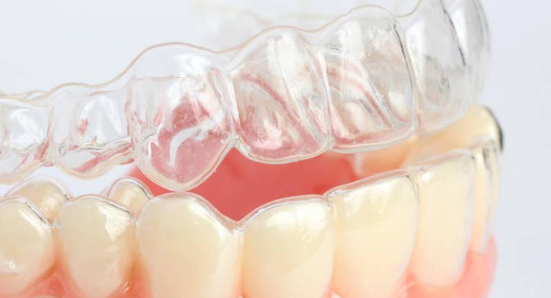 для чего нужны зубные виниры