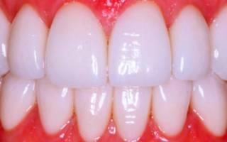Идеальная улыбка с помощью установки виниров на передние зубы