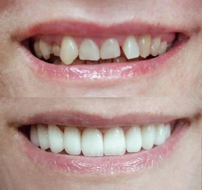 Непрямая реставрация передних зубов
