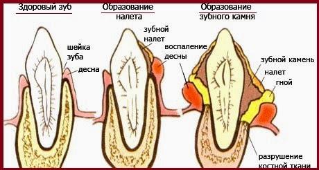 Образование камня на зубах