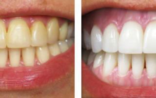 Отбеливание зубов методом Opalescense