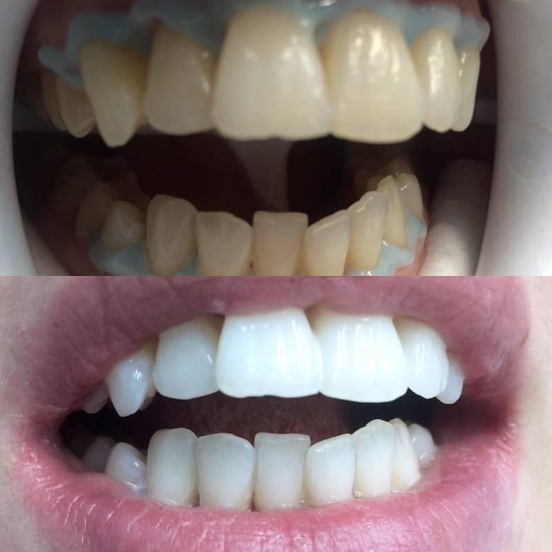 amazing white - до и после
