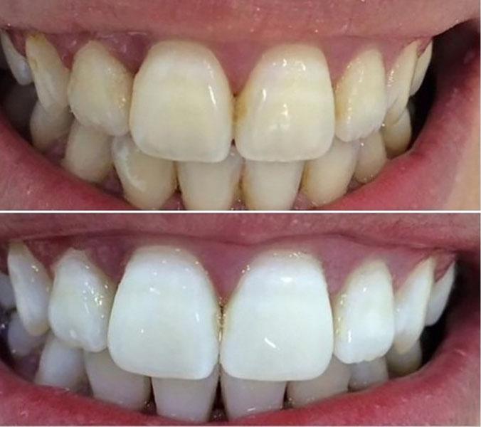 Отбеливание зубов - до и после процедуры