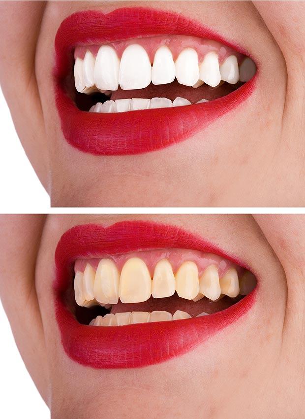 До и после процедуры отбеливания