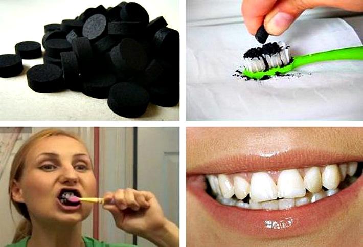 Этапы отбеливания зубов