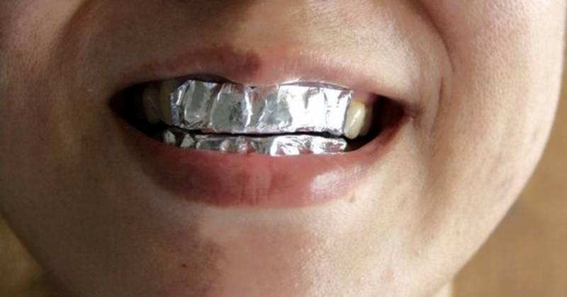 Отбеливание зубов с содой и фольгой