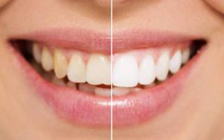 Фото зубов девушки до и после процедуры