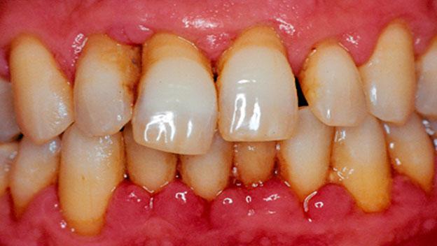 Передние зубы шатаются