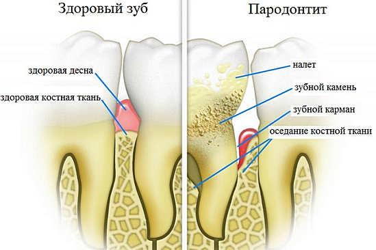Пародонтоз и здоровые зубы