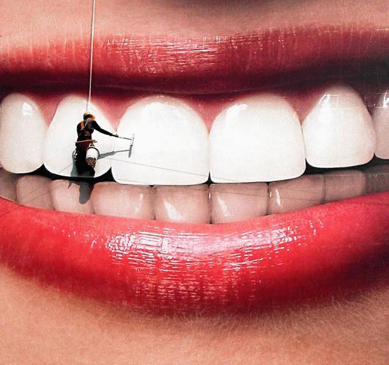Девушке отбеливают зубы